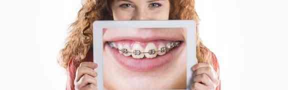 La Ortodoncia no es solo una Solución Estética